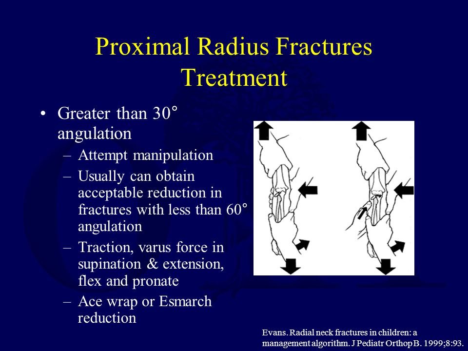 Proximal Radius Fractures Treatment