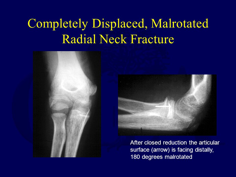 Completely Displaced, Malrotated Radial Neck Fracture