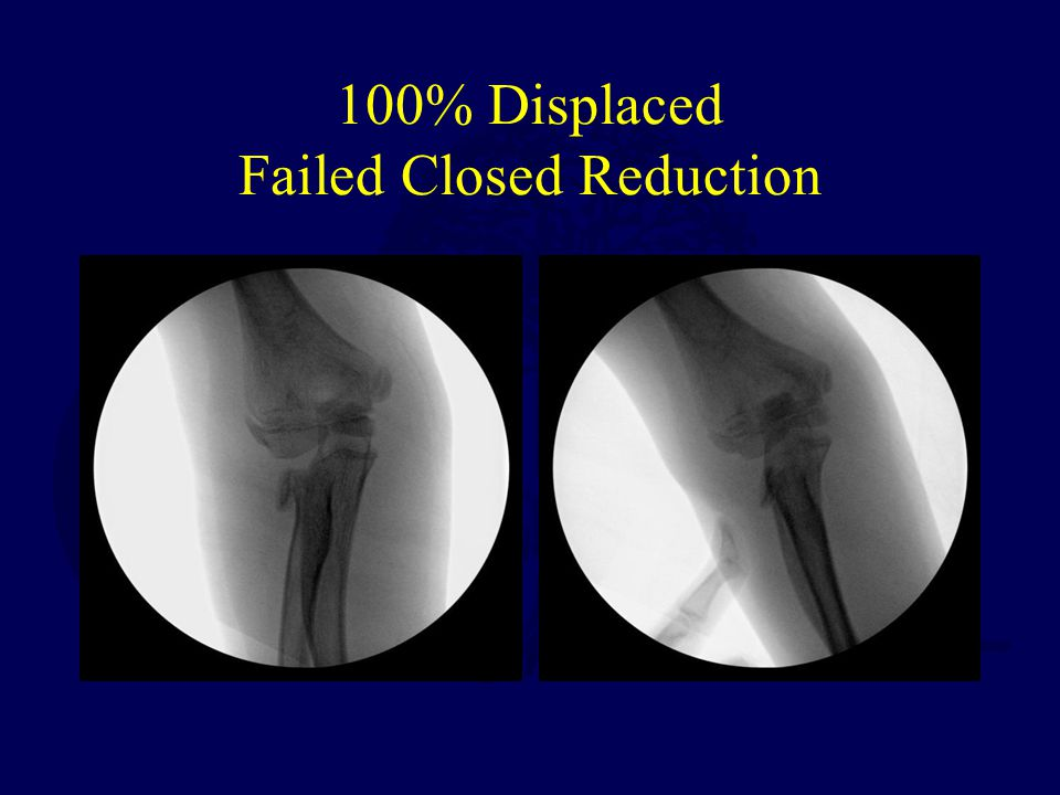 100% Displaced Failed Closed Reduction