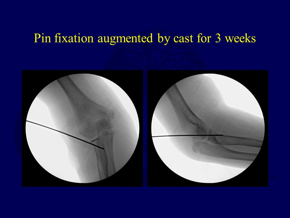 Pin fixation augmented by cast for 3 weeks