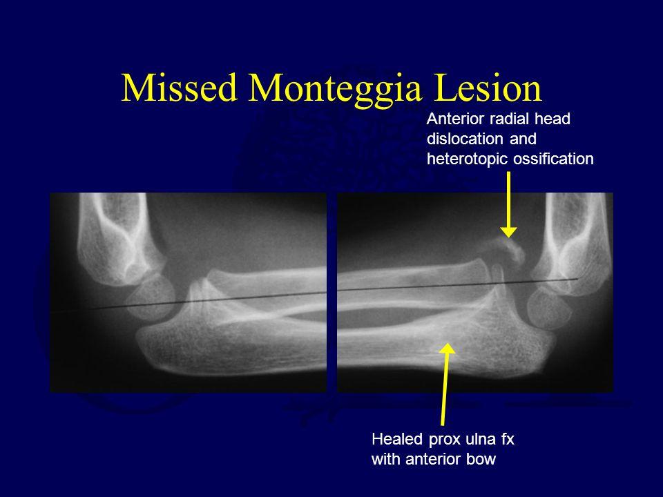 Missed Monteggia Lesion