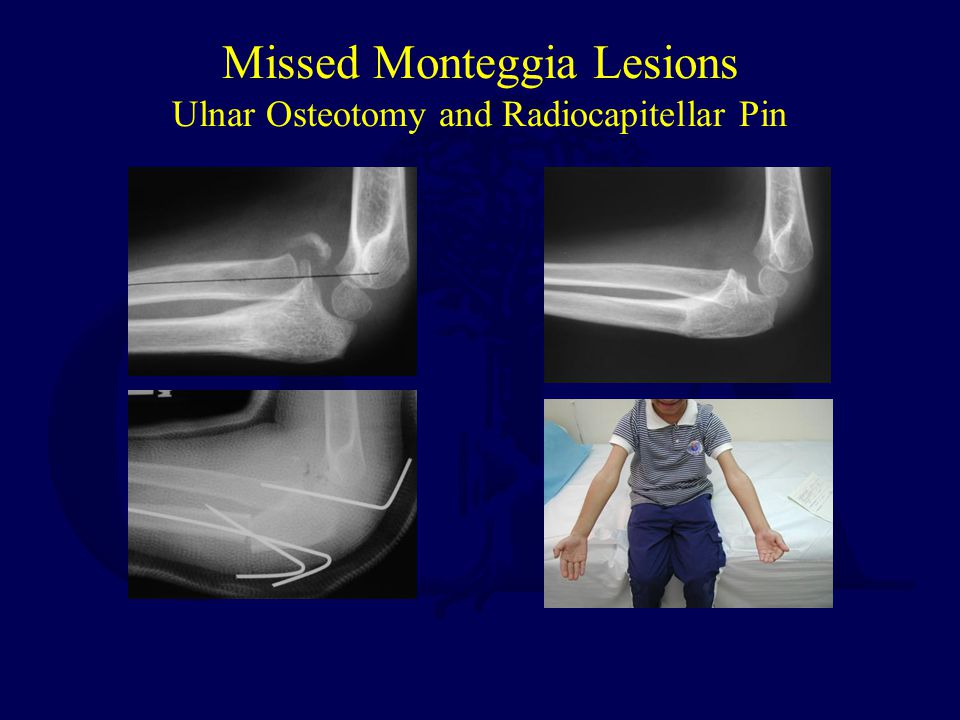 Missed Monteggia Lesions Ulnar Osteotomy and Radiocapitellar Pin