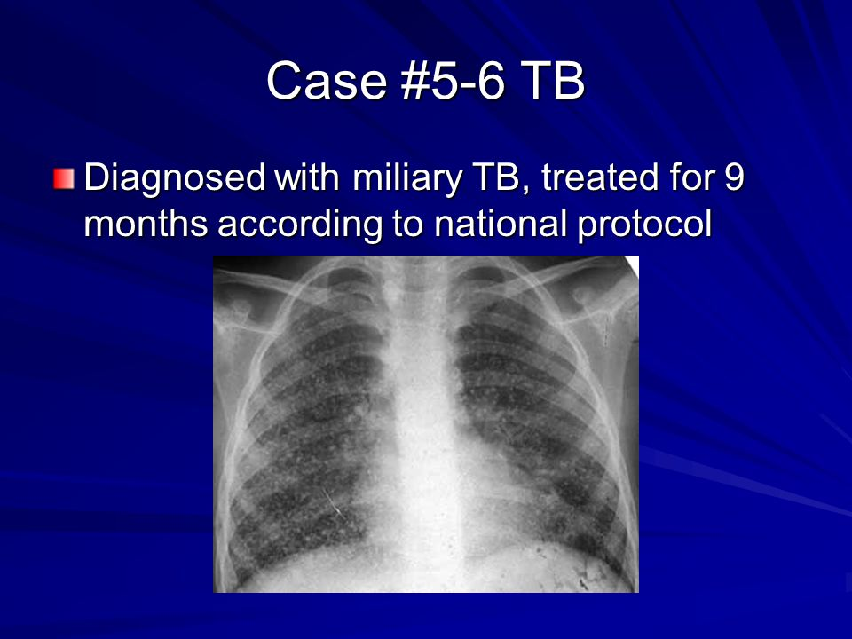 Case #5-6 TB Diagnosed with miliary TB, treated for 9 months according to national protocol