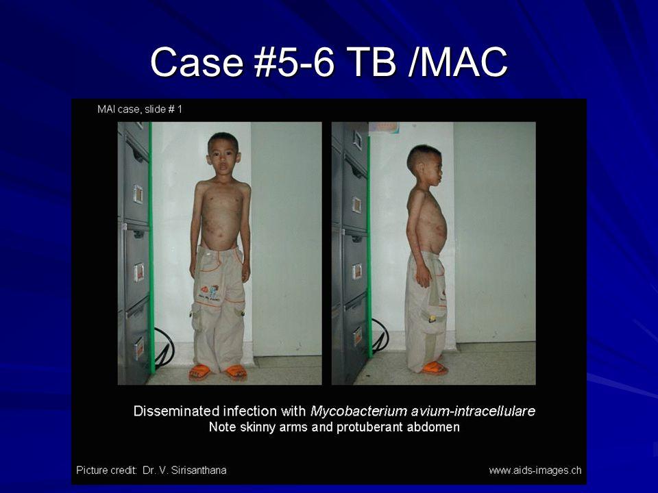 Case #5-6 TB /MAC