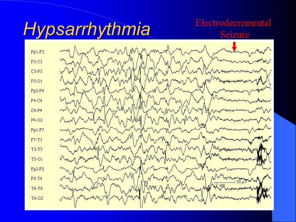 Hypsarrhythmia Electrodecremental Seizure