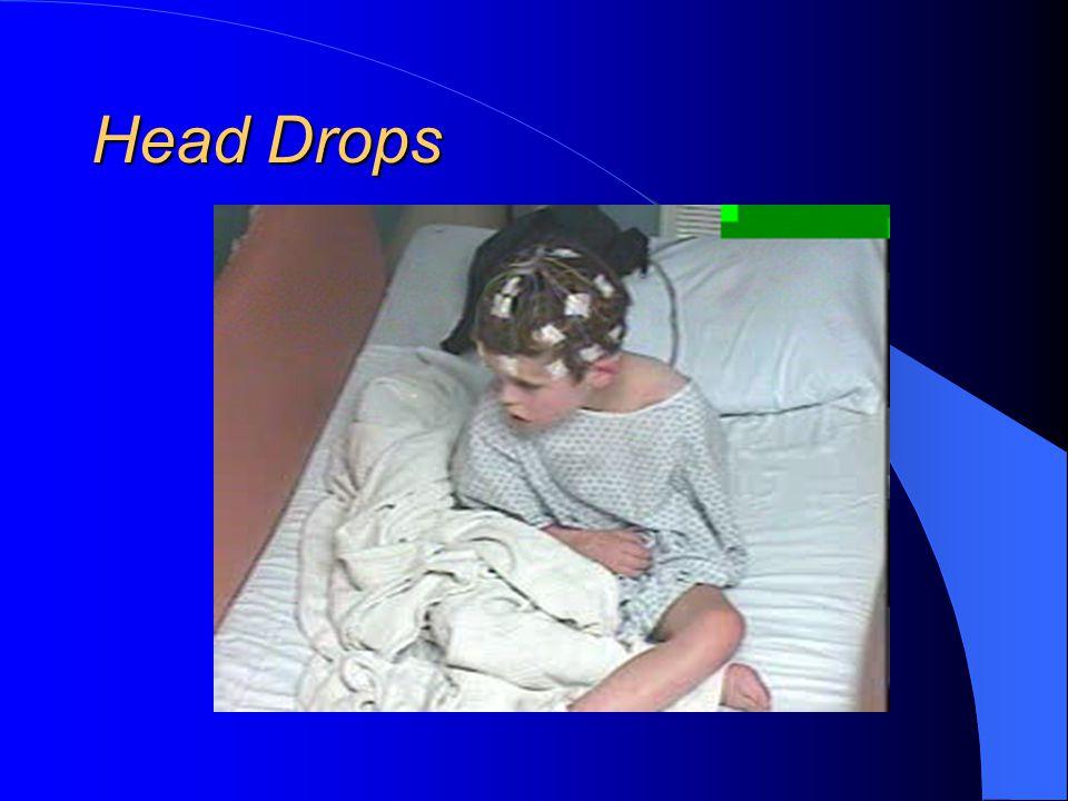 Head Drops