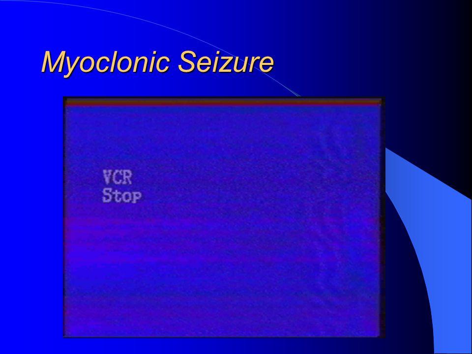 Myoclonic Seizure