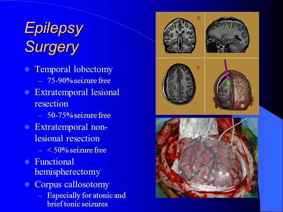 Epilepsy Surgery Temporal lobectomy Extratemporal lesional resection
