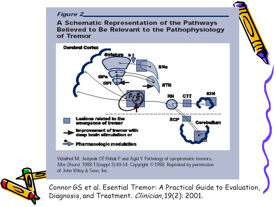 Connor GS et al. Esential Tremor: A Practical Guide to Evaluation,