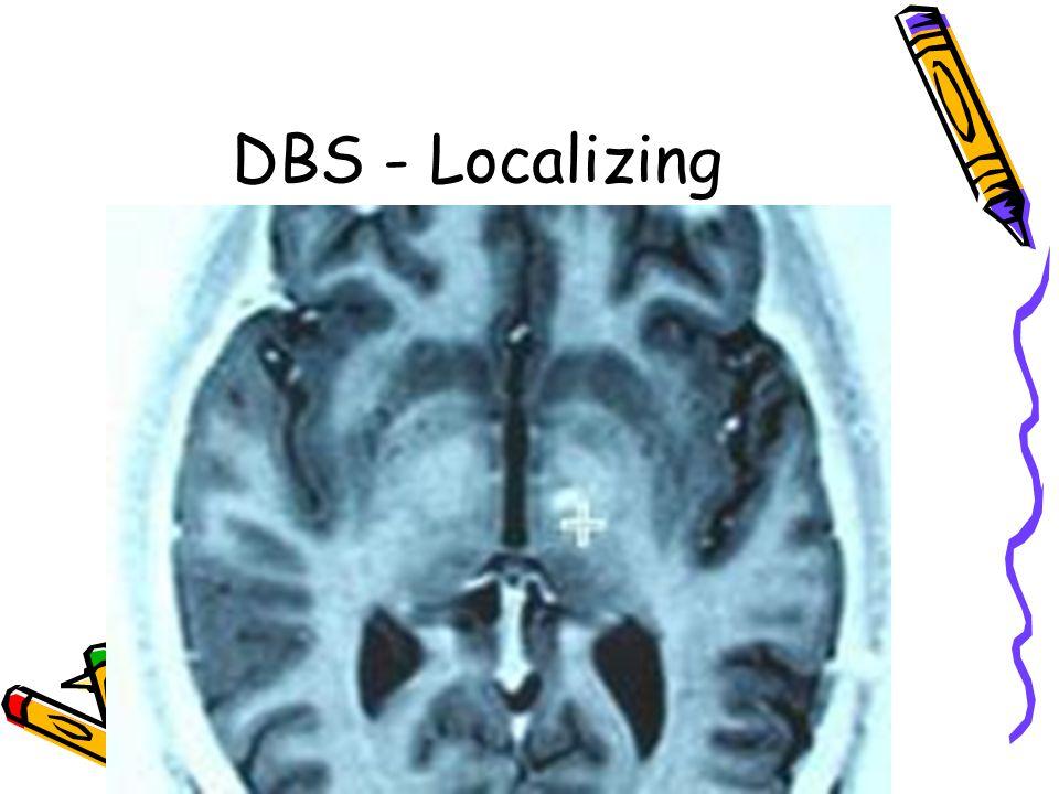 DBS - Localizing