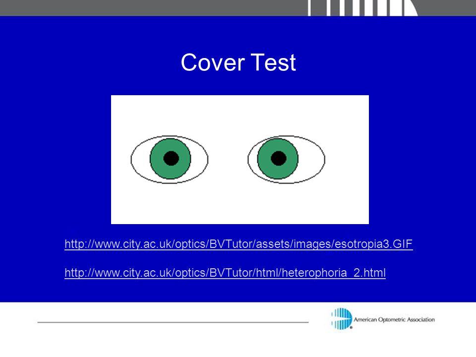 Cover Test http://www.city.ac.uk/optics/BVTutor/assets/images/esotropia3.GIF.