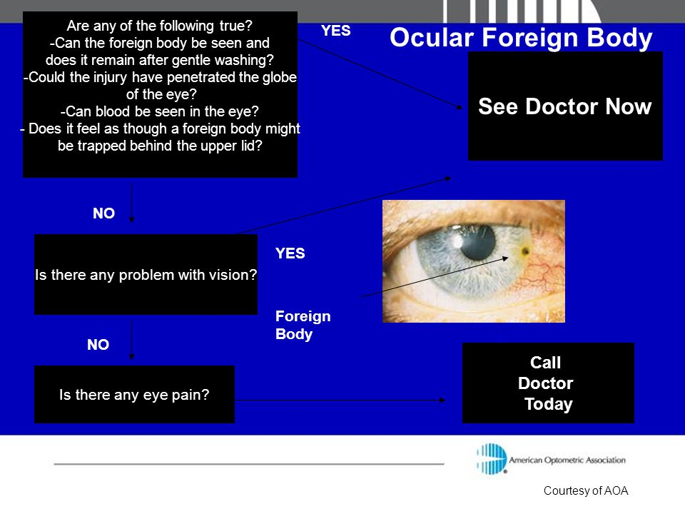 Ocular Foreign Body See Doctor Now Call Doctor Today YES NO YES