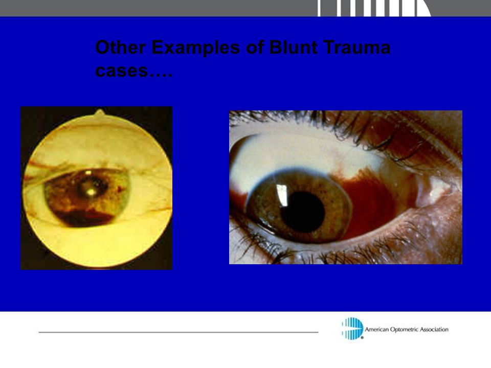Other Examples of Blunt Trauma cases….