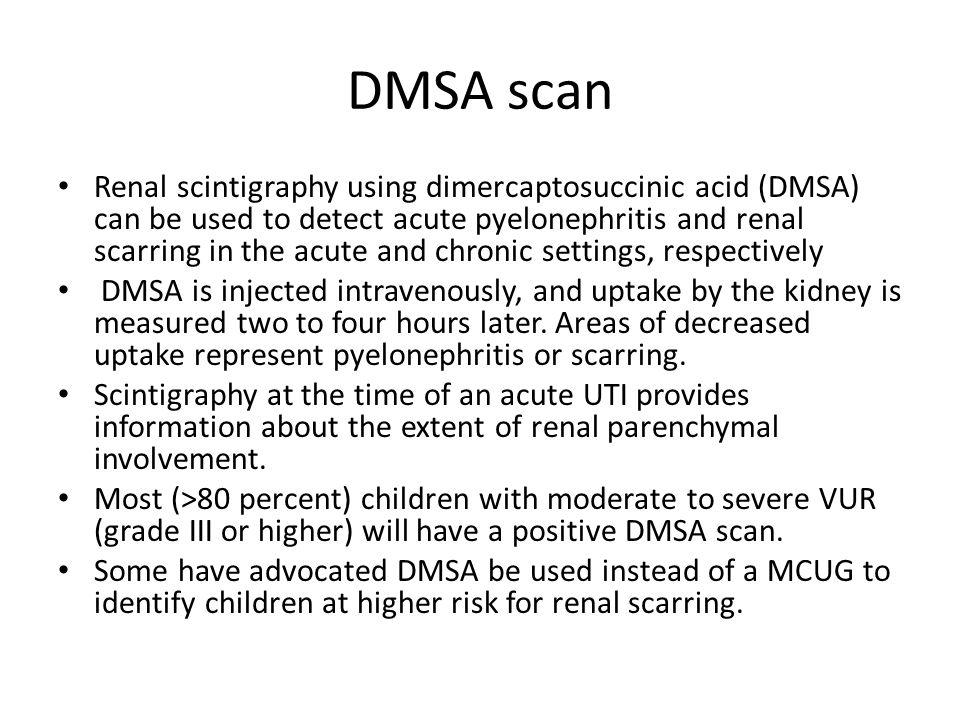 DMSA scan