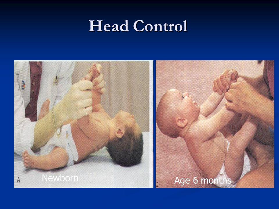 Head Control Newborn Newborn Age 6 months