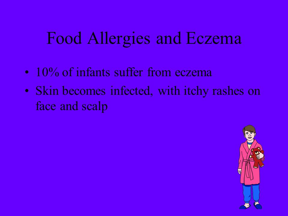 Food Allergies and Eczema