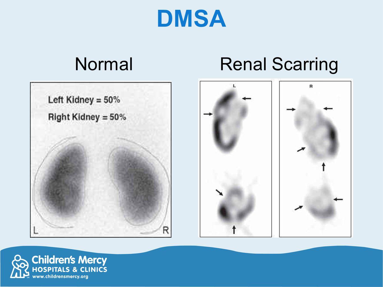 DMSA Renal Scarring Normal