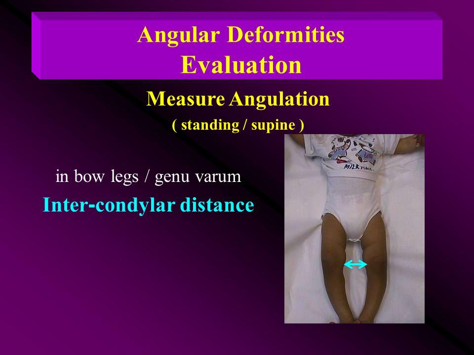 Angular Deformities Evaluation Inter-condylar distance