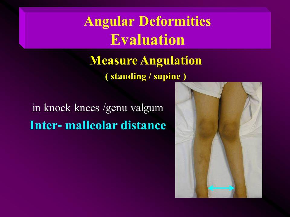 Angular Deformities Evaluation Inter- malleolar distance