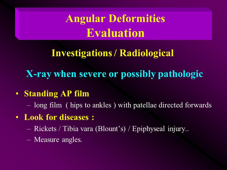 Angular Deformities Evaluation