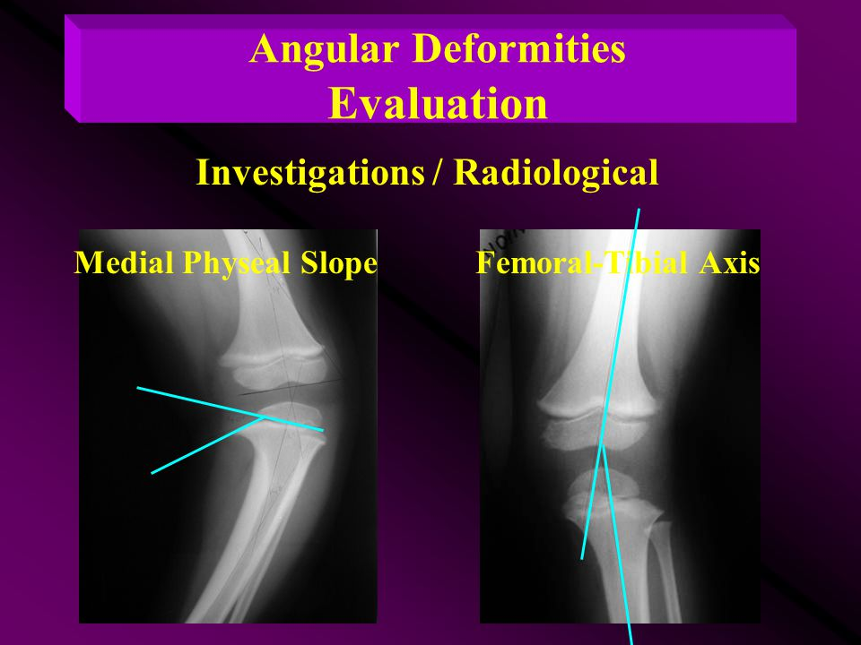Angular Deformities Evaluation Investigations / Radiological
