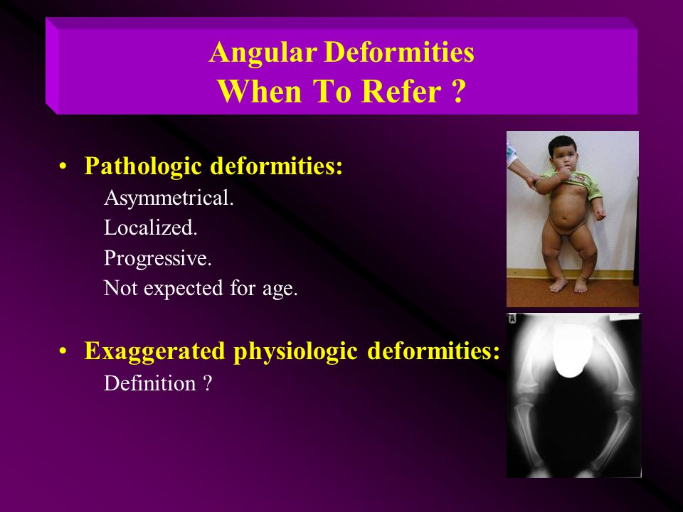 Angular Deformities When To Refer