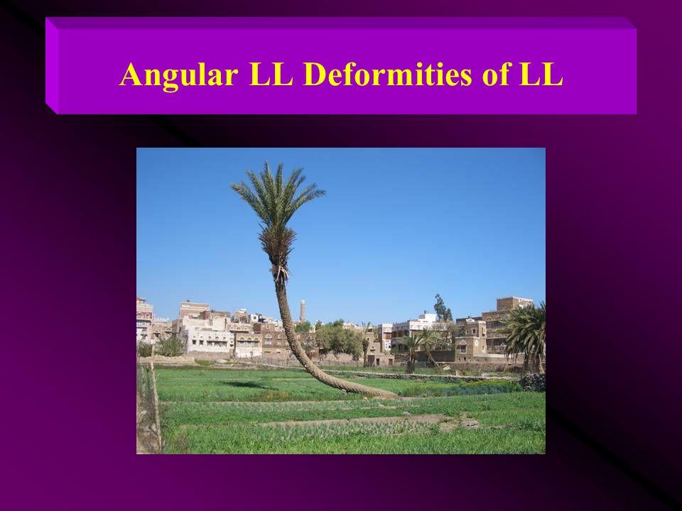 Angular LL Deformities of LL