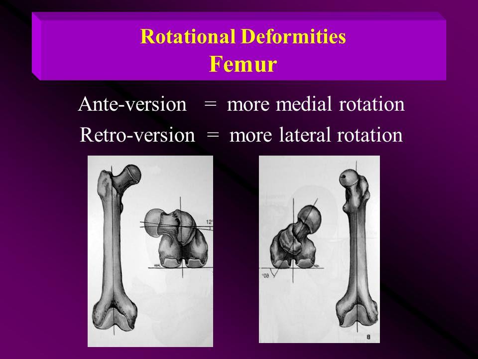Rotational Deformities Femur