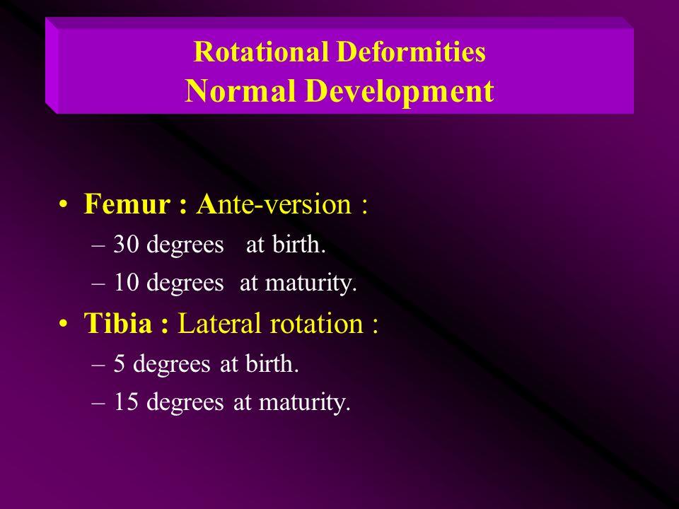 Rotational Deformities Normal Development