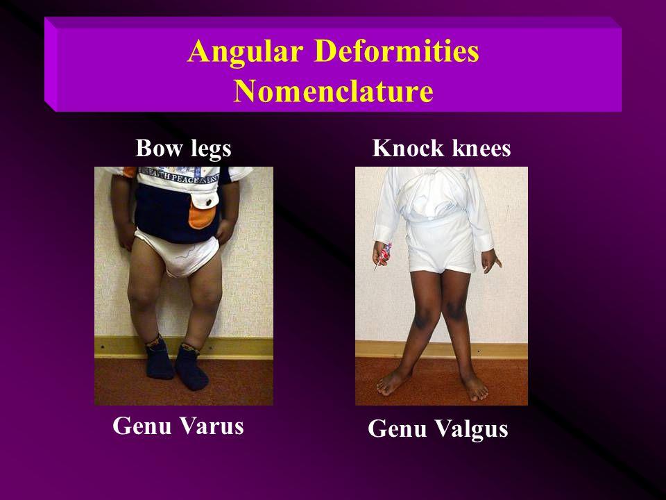 Angular Deformities Nomenclature