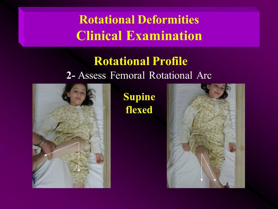 Rotational Deformities Clinical Examination Rotational Profile 2- Assess Femoral Rotational Arc