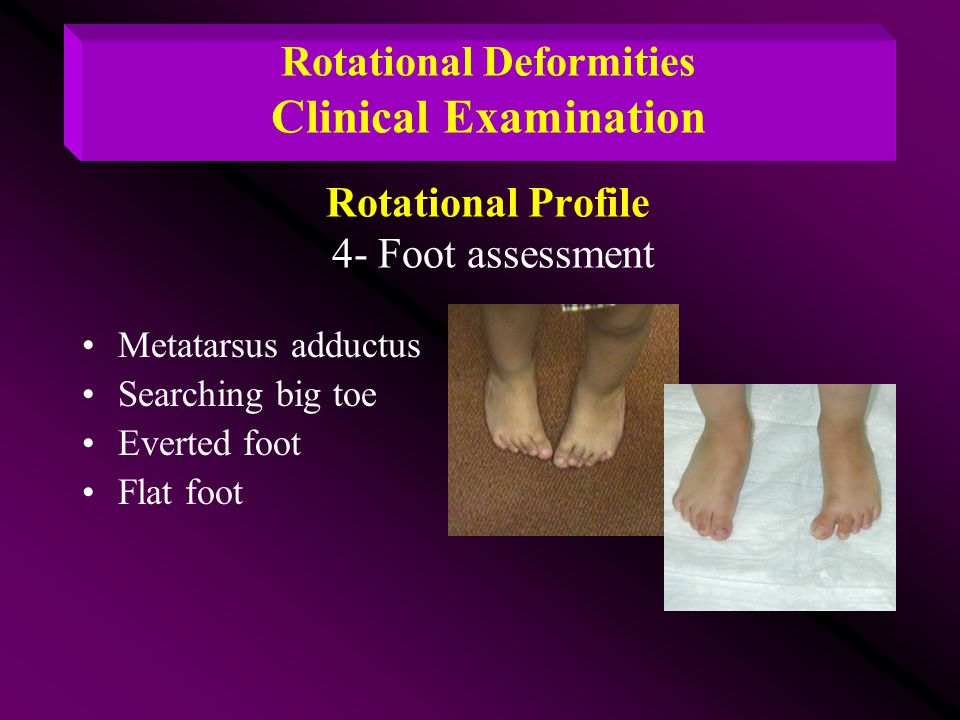 Rotational Deformities Clinical Examination Rotational Profile 4- Foot assessment