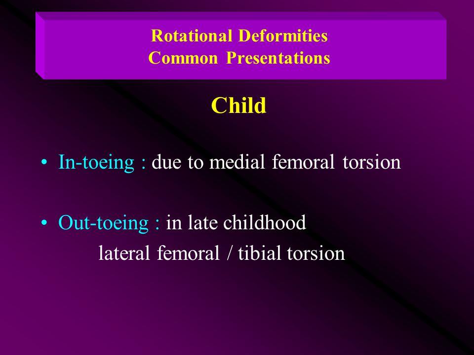 Rotational Deformities Common Presentations Child