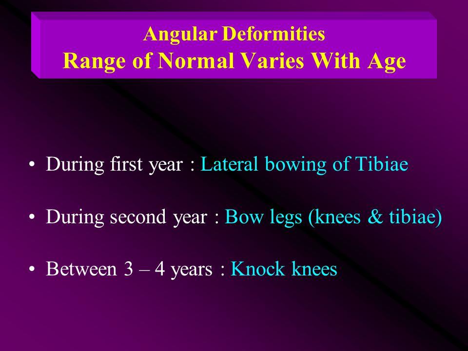 Angular Deformities Range of Normal Varies With Age