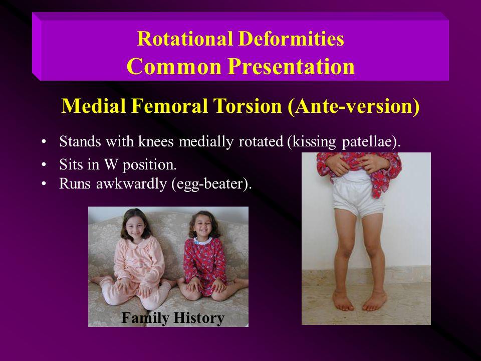 Rotational Deformities Common Presentation
