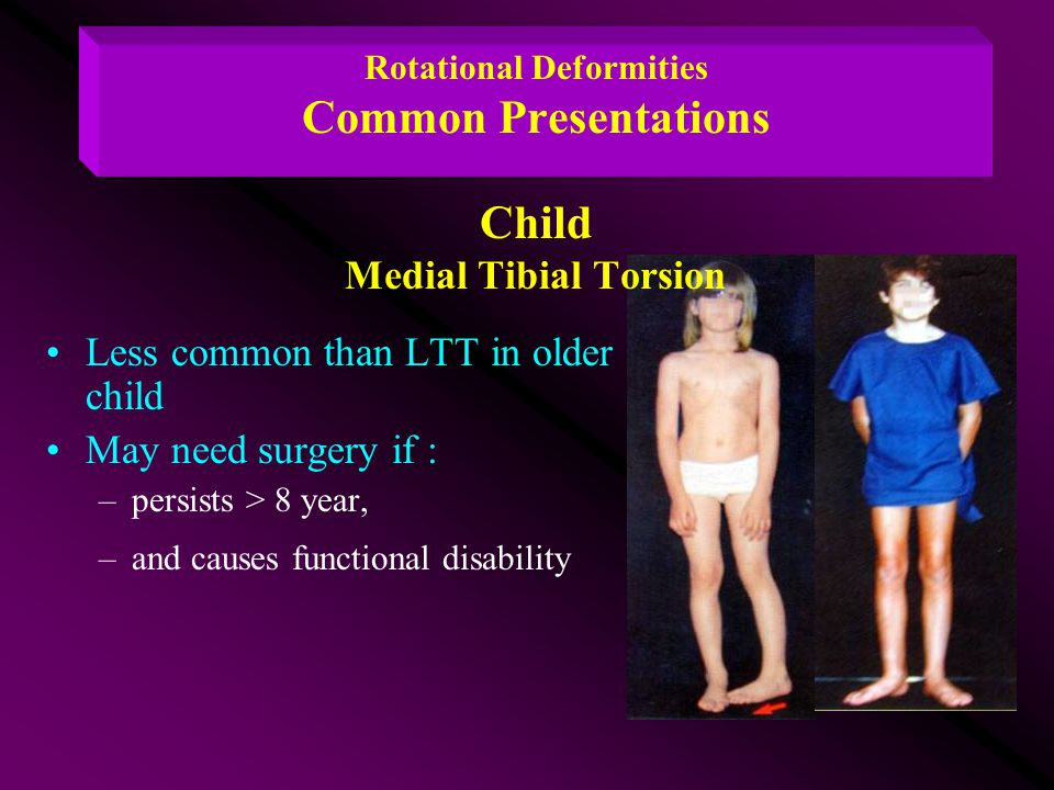 Less common than LTT in older child May need surgery if :