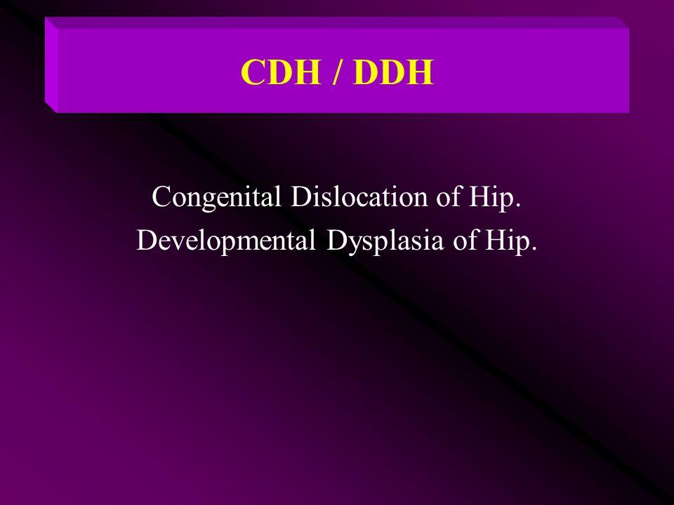 CDH / DDH Congenital Dislocation of Hip.