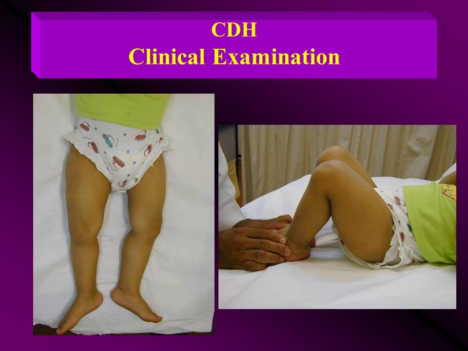 CDH Clinical Examination