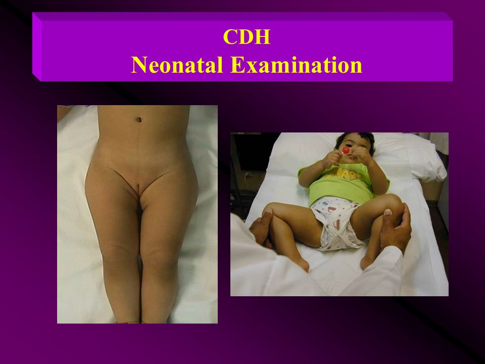 CDH Neonatal Examination
