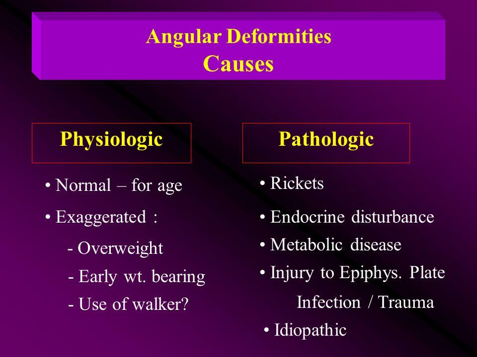 Angular Deformities Causes