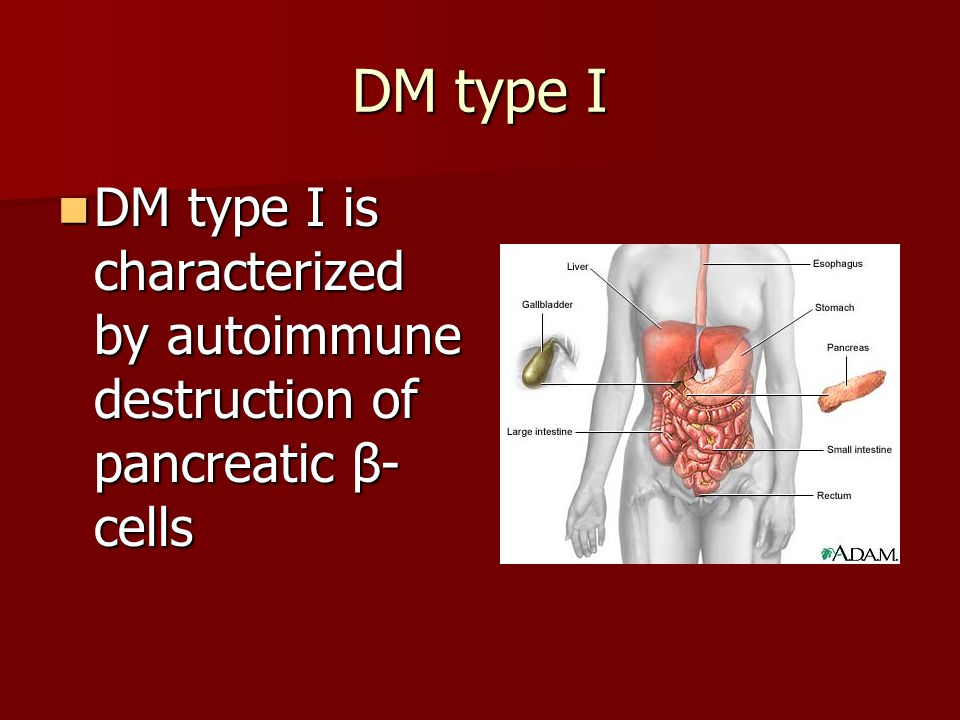 DM type I DM type I is characterized by autoimmune destruction of pancreatic β-cells