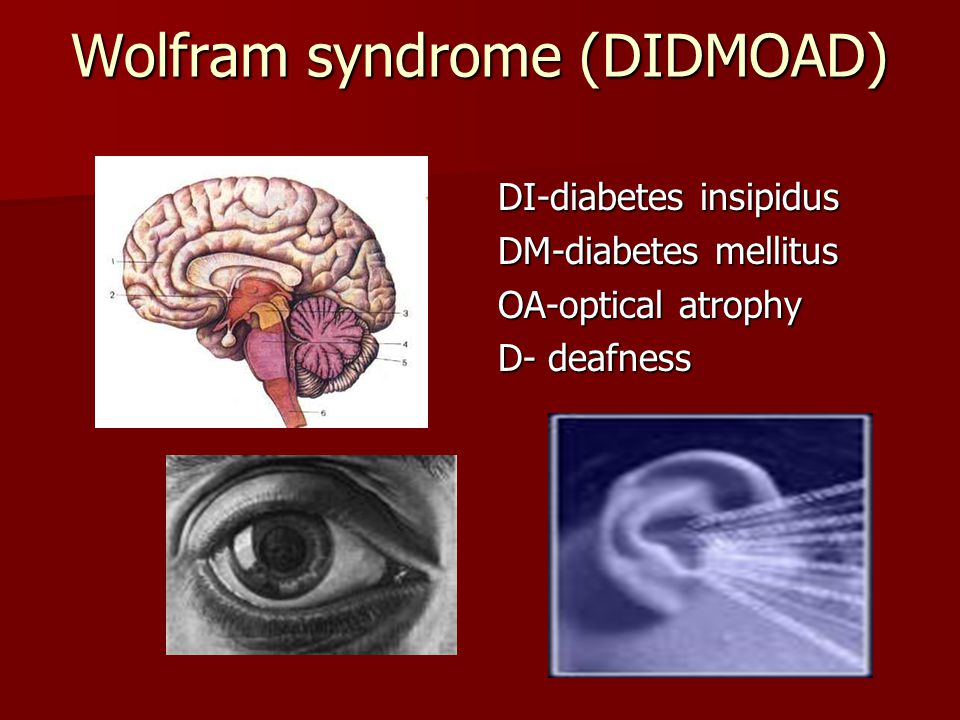 Wolfram syndrome (DIDMOAD)