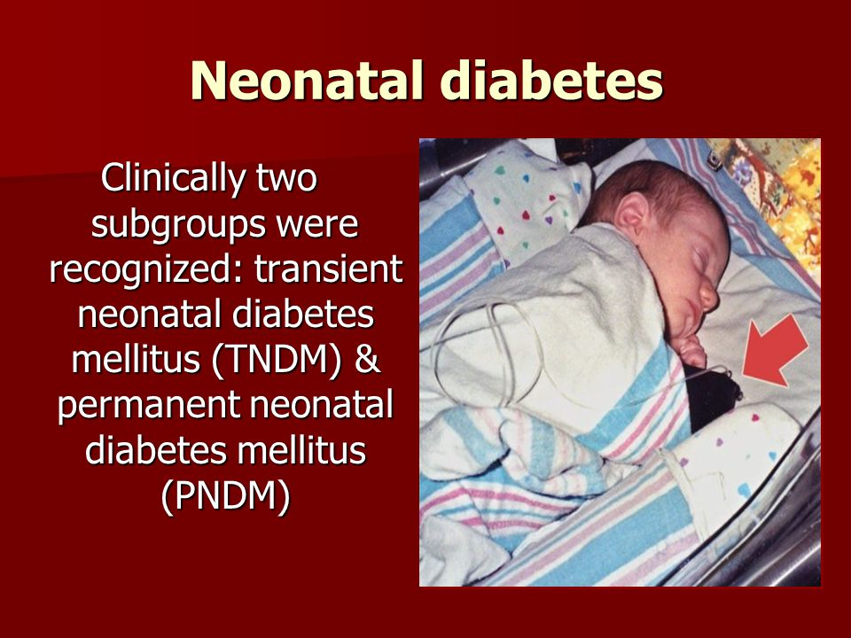 Neonatal diabetes Clinically two subgroups were recognized: transient neonatal diabetes mellitus (TNDM) & permanent neonatal diabetes mellitus (PNDM)
