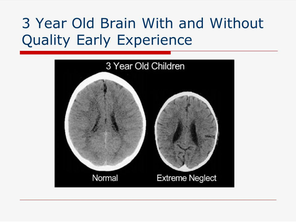 3 Year Old Brain With and Without Quality Early Experience