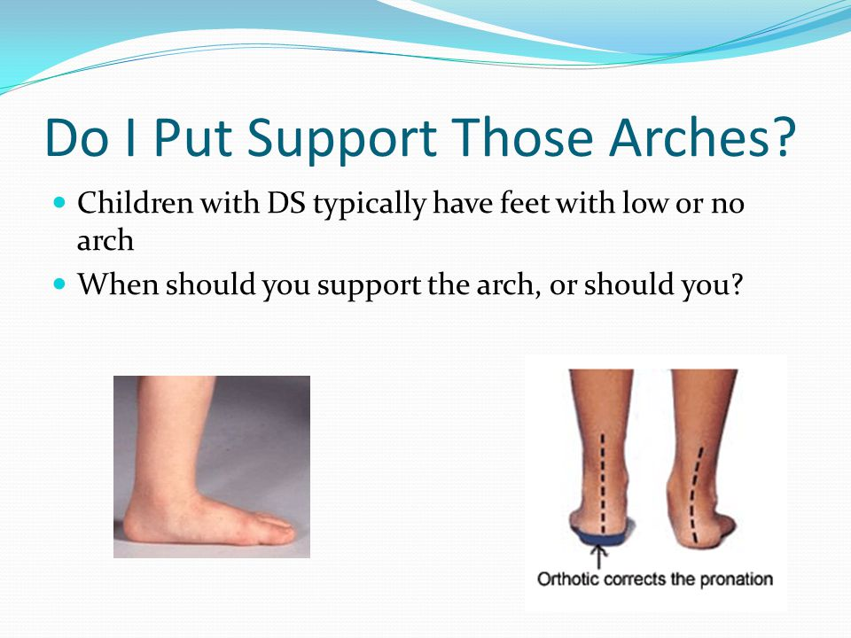 Do I Put Support Those Arches