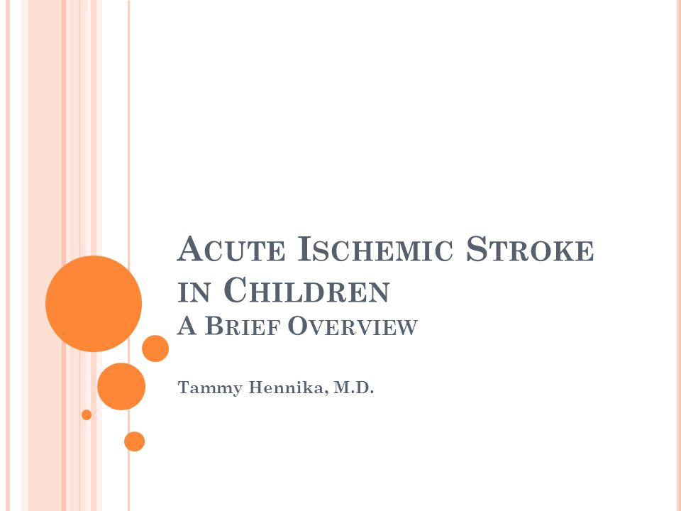 Acute Ischemic Stroke in Children A Brief Overview