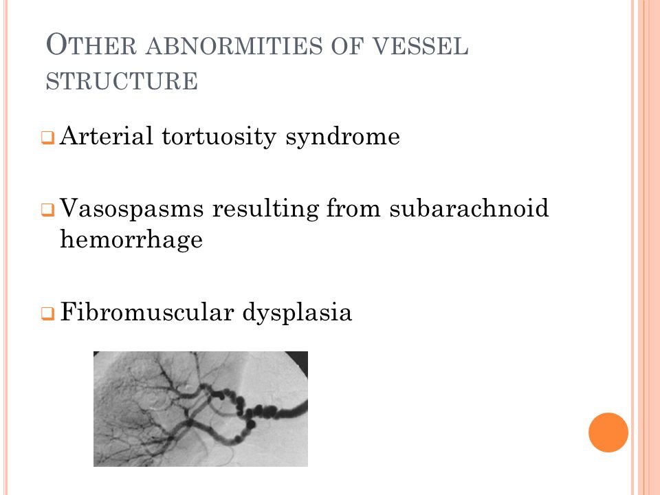 Other abnormities of vessel structure