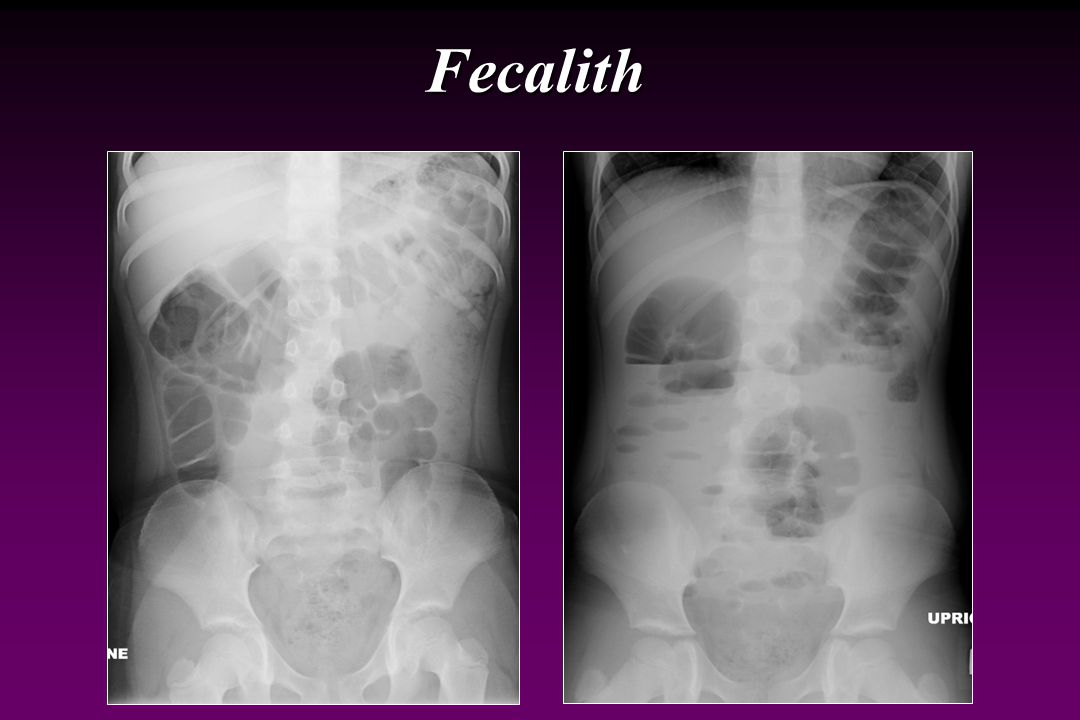 Fecalith