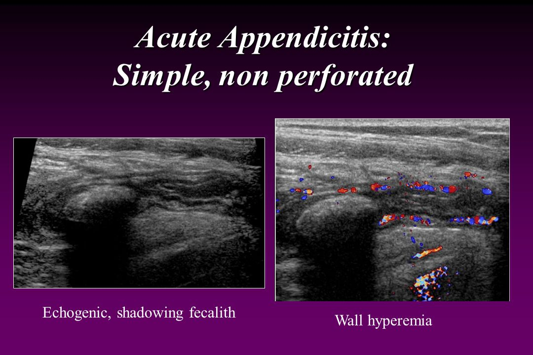 Acute Appendicitis: Simple, non perforated