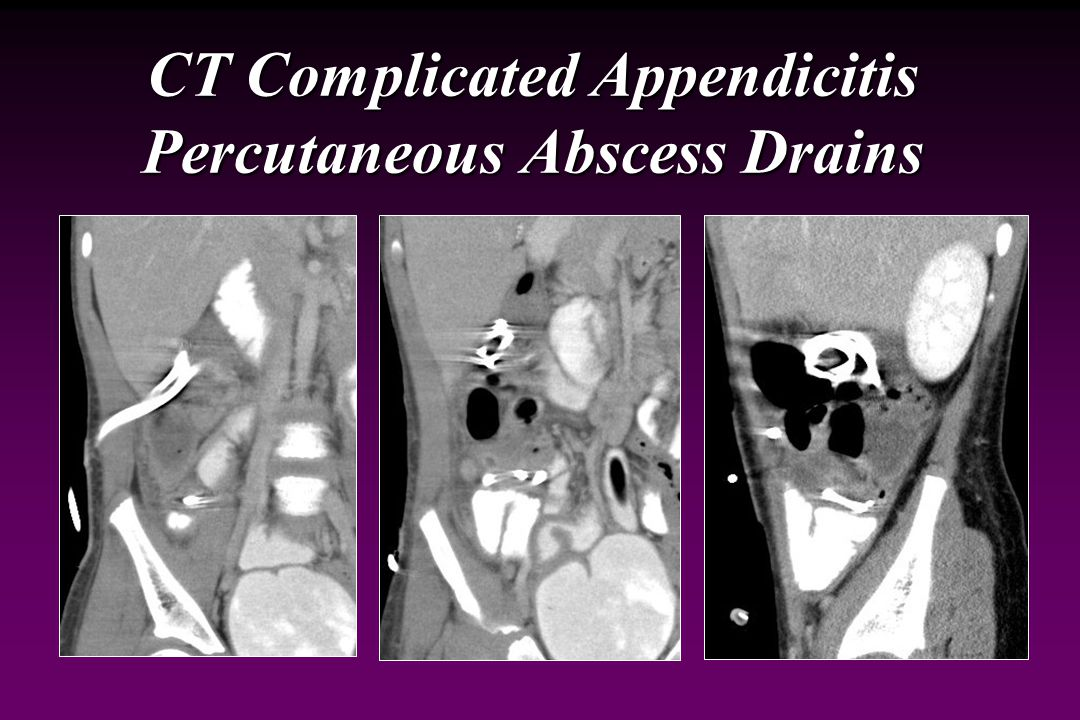 CT Complicated Appendicitis Percutaneous Abscess Drains